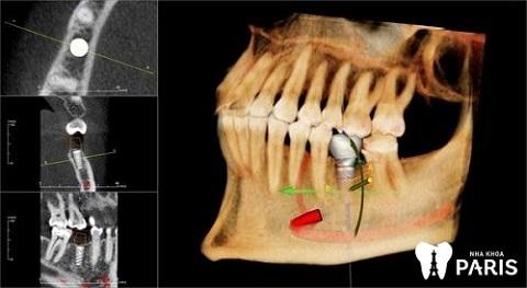 Phẫu thuật hàm hô ở đâu tốt phụ thuộc vào công nghệ thực hiện tại nơi đó
