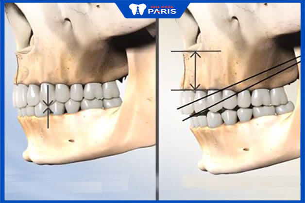 Tìm hiểu phương pháp phẫu thuật hàm hô nhổ răng số 4