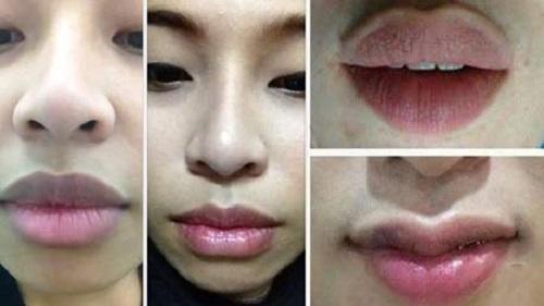 Phẫu thuật miệng rộng môi dày
