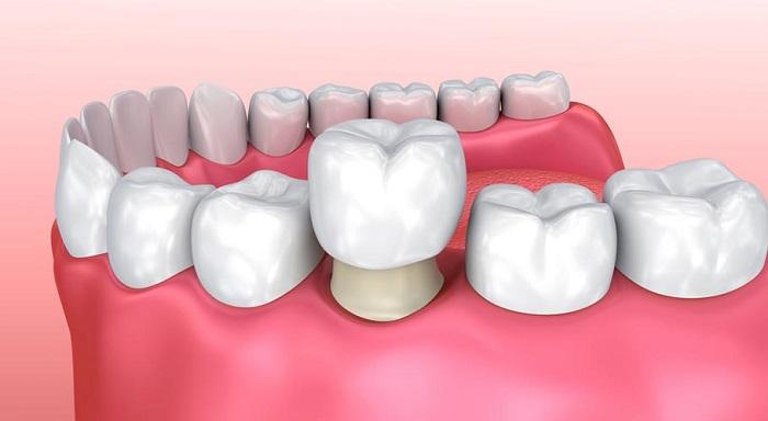 Các bước tiến hành bọc răng sứ