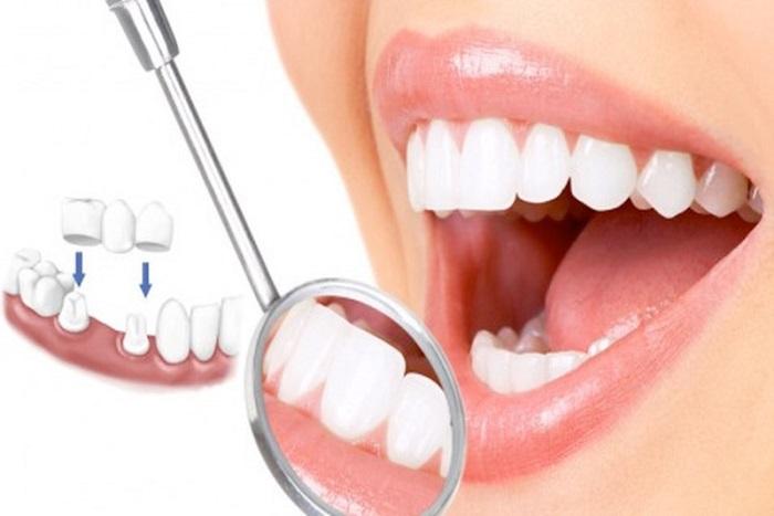 Bọc răng sứ gián tiếp
