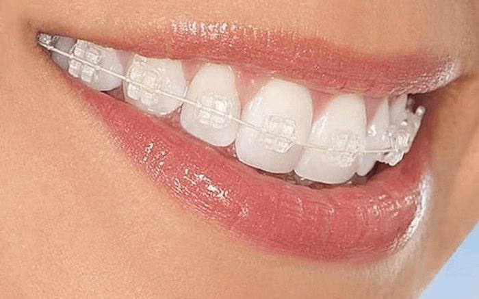 Niềng răng sẽ giúp các răng xô lệch