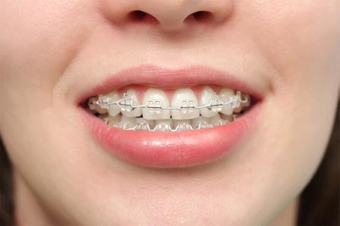 Chỉnh răng hô hàm trên