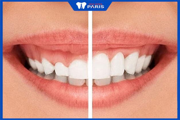 Các phương pháp tiểu phẫu cười hở lợi