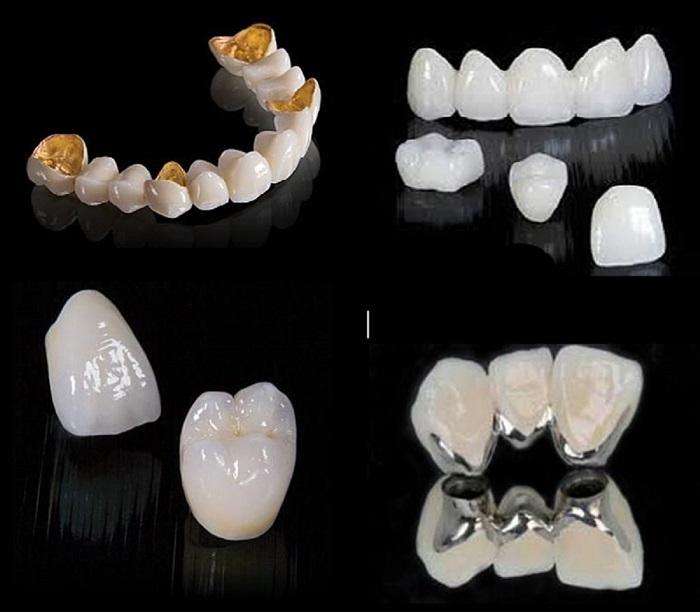 quá trình bọc răng sứ thẩm mỹ
