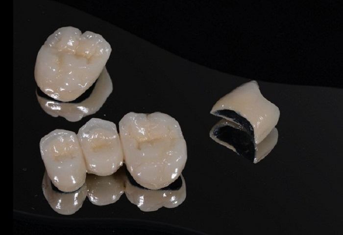 quy trình bọc răng sứ và hẹn lịch tái khám