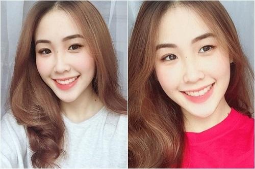 Quỳnh Anh Hot girl niềng răng