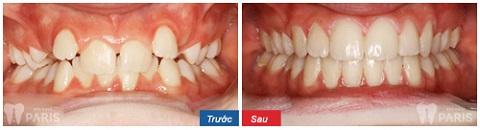 Niềng răng là giải pháp nắn chỉnh răng an toàn, hiệu quả bậc nhất hiện nay 2