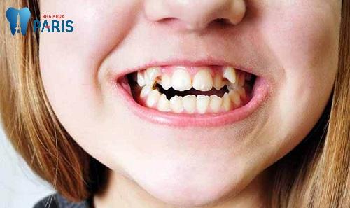 răng bị lồi sỉ