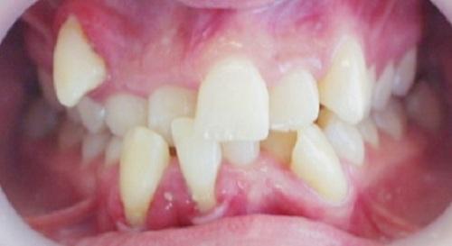 răng cửa bị lệch