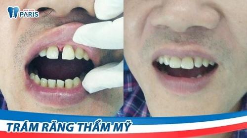 răng cửa bị sâu có trám được không