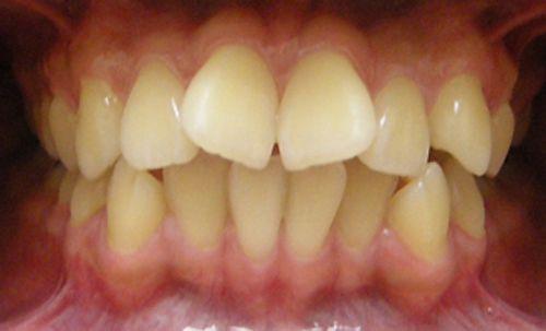 răng cửa chữ V