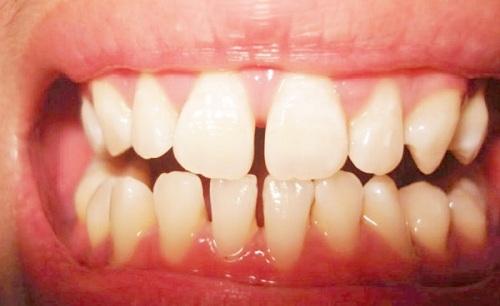 Răng cửa hở