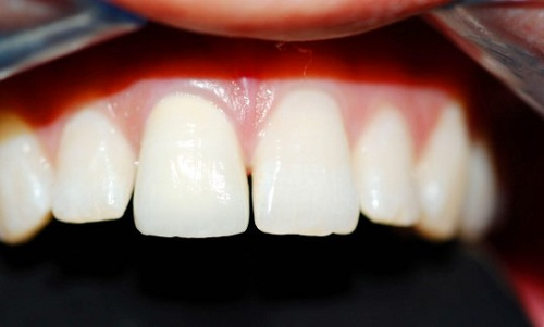 răng cửa to và dài