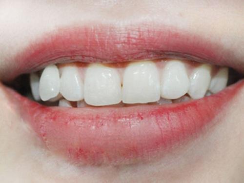 răng cửa to vuông