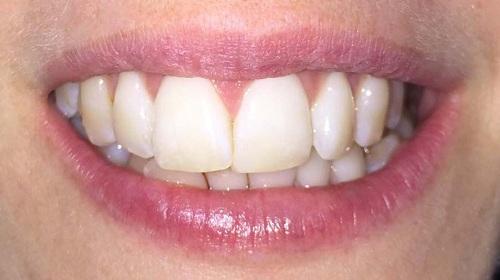 răng cửa to