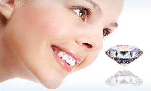 Xu hướng: Răng đẹp hàn quốc nhờ công nghệ đính đá vào răng