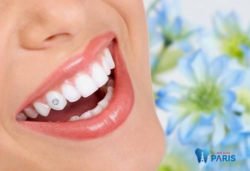 Răng đẹp miệng xinh nổi bật phá cách nhờ thẩm mỹ đính đá vào răng