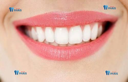 Răng đẹp miệng xinh giúp nụ cười cuốn hút tự tin trong cuộc sống