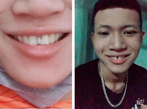răng dư kẽ giữa