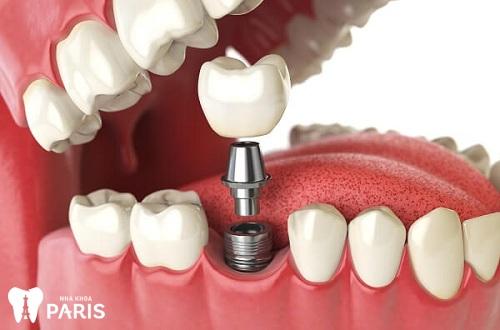Răng hàm có thay ko