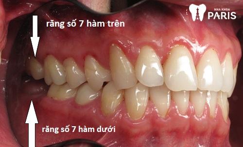 răng hàm số 7 là răng nào