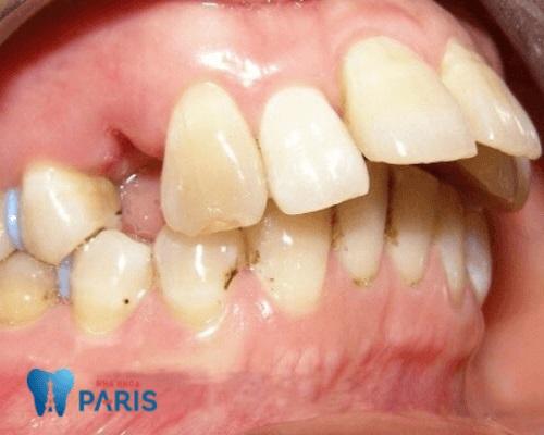răng hô nặng