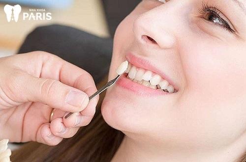 răng khểnh dễ thương