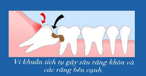 Răng khôn bị sâu nên nhổ hay trám