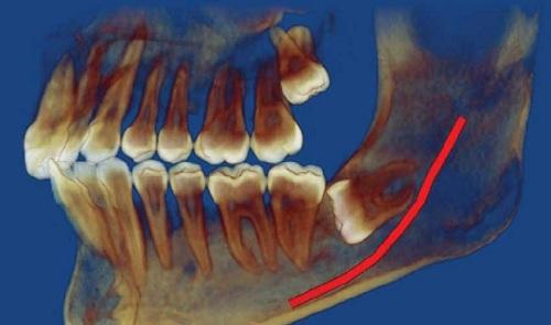 Răng khôn chèn dây thần kinh