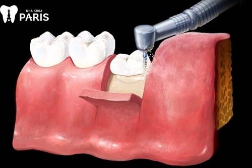 răng khôn chưa mọc có nhổ được không