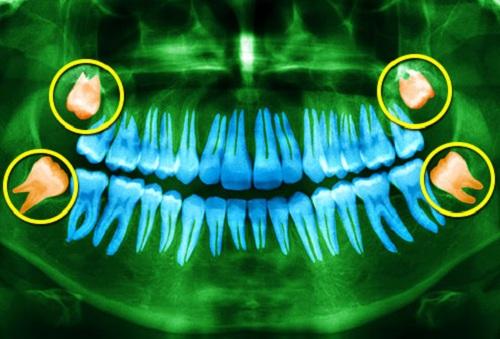 Răng số 8/Răng khôn là gì? Răng khôn mọc lệch, ngang,…phải làm sao??