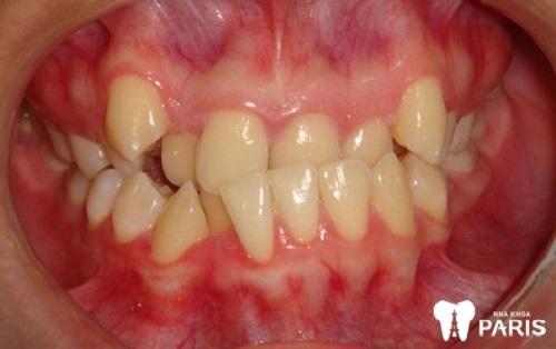 Răng khớp cắn ngược