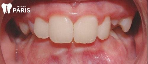Răng khớp căn sâu nặng