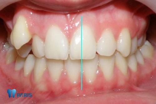 răng lệch trung nhân