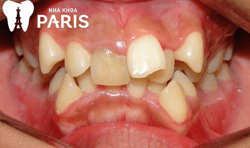răng lòi xỉ là gì