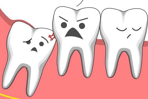 Răng mọc lệch hàm dưới