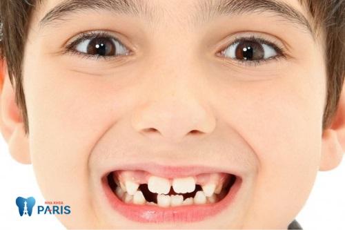 răng mọc lệch ở trẻ em