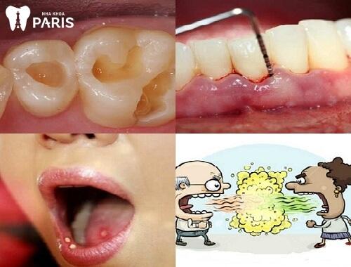 răng mọc ngược có nguy hiểm không