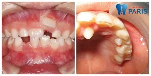 răng mọc thừa ở hàm trên