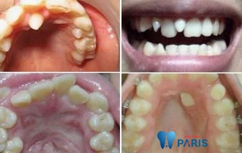 răng mọc thừa