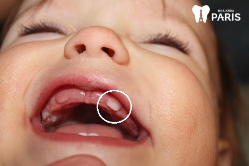 răng nanh ở trẻ sơ sinh