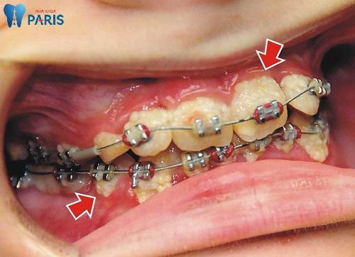 răng sâu có niềng được không