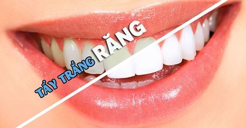 răng sâu có tẩy trắng được không