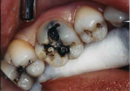 Răng sâu nặng phải làm sao