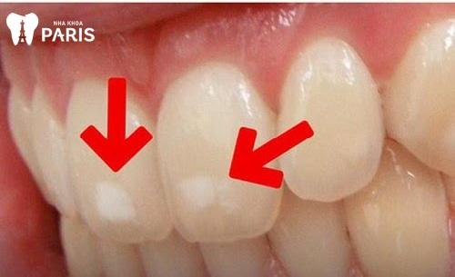 Răng sâu nhẹ nên làm gì