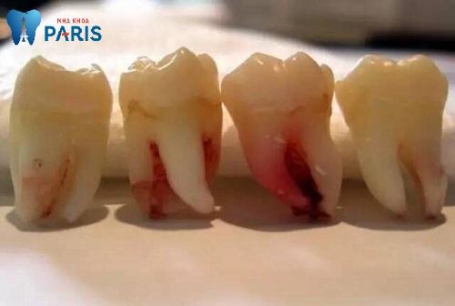 Răng số 8 mọc lệch ra má