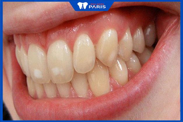 Răng toàn sứ được chỉ định dùng trong những trường hợp nào