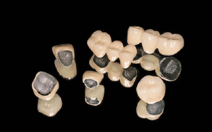 khám sức khỏe răng miệng định kỳ