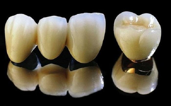 răng sứ kim loại sử dụng được bao lâu